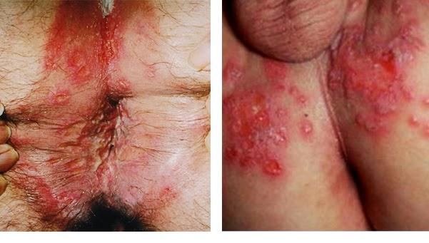 Collage herpes anal perianal