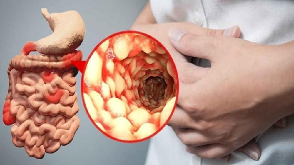 Crohn s disease treatment