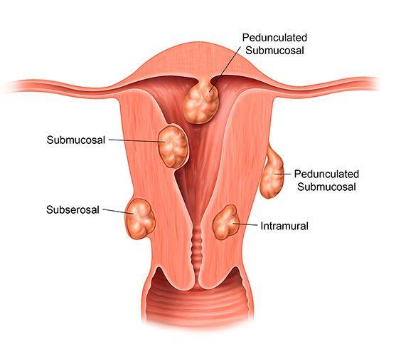 Fibroid image