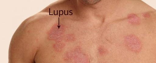 Herbal medicine for lupus
