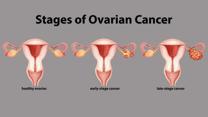 Ovarian cancer stages 722x406